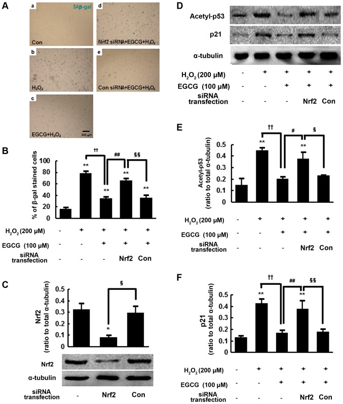 Nuclear factor-erythroid 2-related factor 2 (Nrf2) activation mediated by epigallocatechin-3-gallate (EGCG) pre-treatment suppresses H 2 O 2 -induced senescence and the expression of acetyl-p53 and p21 in human mesenchymal stem cells (hMSCs). (A) Senescence-associated β-galactosidase (SAβ-gal) staining analysis of control, H 2 O 2 -exposed, EGCG-pre-treated/H 2 O 2 -exposed, EGCG-pre-treated/H 2 O 2 -exposed/Nrf2-siRNA-transfected and EGCG-pre-treated/H 2 O 2 -treated/control-siRNA-transfected cells. hMSCs were transiently transfected for 48 h with either Nrf2 or control siRNA and treated with 100 μ M EGCG for 6 h followed by H 2 O 2 exposure (200 μ M, 2 h). Twenty-four hours after H 2 O 2 exposure, the cells were subjected to SAβ-gal staining (blue cytoplasmic stain). Scale bar, 200 μ m. (B) Quantification of SAβ-gal activity. (C) Western blot analysis and quantification of Nrf2 at 48 h after Nrf2 siRNA or control siRNA transfection. (D–F) Western blot analysis and quantification of acetyl-p53 and p21 protein levels in each group. The levels determined in four independent experiments are presented as the means ± SEM. * P
