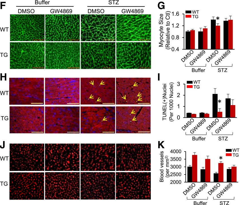 Hsp20-mediated cardioprotective effects are largely offset by blockade of the exosome generation. A : A scheme of the experimental procedure for the treatment of mice with STZ and GW4869. B : Exosome concentration was measured in the serum of mice treated with GW4869 ( n = 5). * P