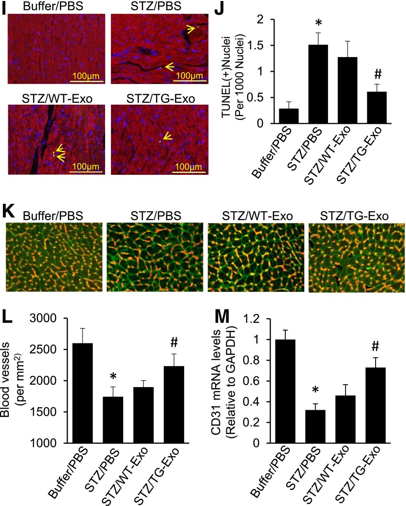 Injection of Hsp20-enriched exosomes collected from TG cardiomyocytes protects mice against STZ-induced cardiac adverse remodeling. A : DiR-labeled cardiomyocyte-derived exosomes were detectable in mouse cardiomyocytes 1 h after the tail-vein injection in vivo. The right image is magnified from insert square of A . B and C : Exosomal Hsp20 was dose-dependently delivered to the mouse heart after the tail-vein injection. D and E : The time course determination of cardiac Hsp20 levels in TG-Exo–injected mice. F : A scheme of the experimental procedure for the exosome injection in STZ-treated mice. G and H : LVIDd and LVEF% were significantly improved in TG-Exo–injected diabetic mice ( n = 5–8). * P