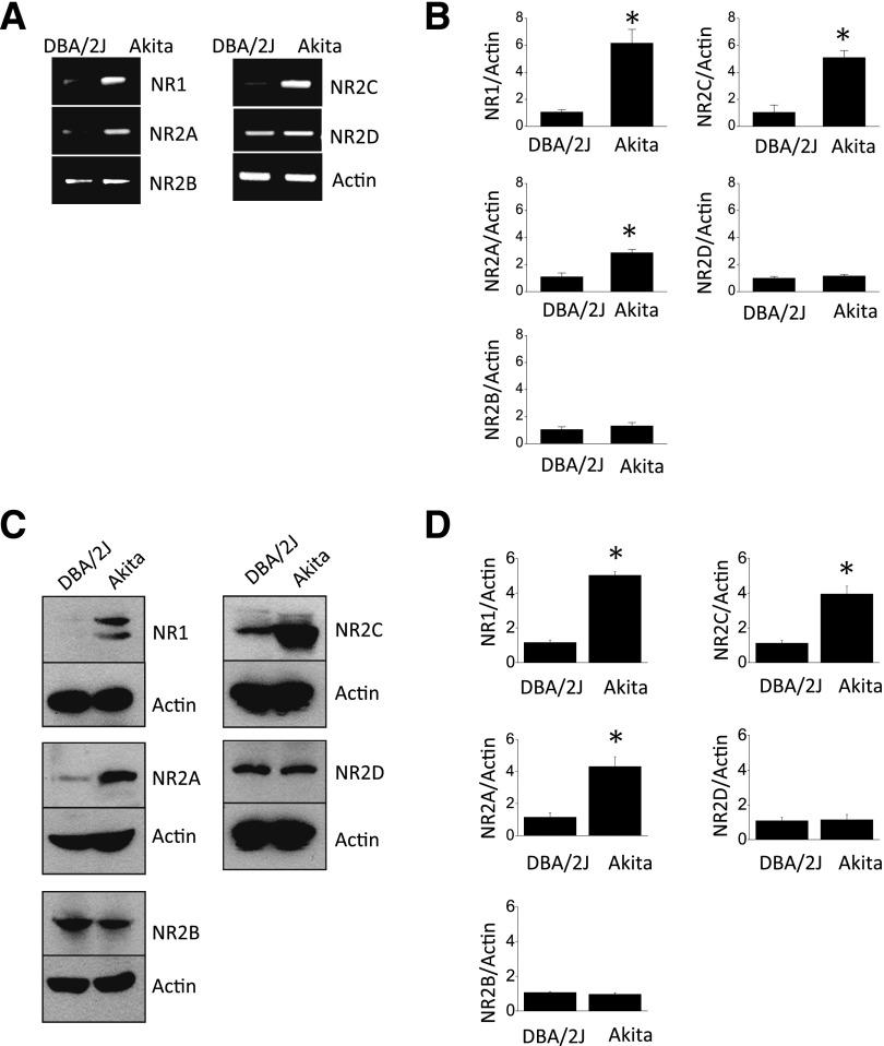 Increased expression of NMDA receptor subunits in renal cortex of Akita mice. A : Representative results of RT-PCR showing increased abundance of transcripts encoding NR1, NR2A, and NR2C subunits but not in NR2B or NR2D in renal cortex in 12-week-old Akita mice compared with 12-week-old DBA/2J control mice. B : Densitometric analysis from four mice per group. C : Immunoblot analysis showing increased abundance of NMDA receptor subunits in Akita mice compared with DBA/2J control mice. D : Densitometric analysis from four mice per group. Data are mean ± SD. * P