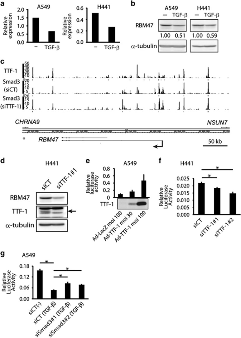 Regulation of RBM47 by TGF-β and TTF-1 in lung adenocarcinoma cells. ( a, b ) After the 24-h treatment of A549 cells and H441 cells with 2.5 ng/ml TGF-β, expression levels of RBM47 mRNA and protein were examined by qRT–PCR ( a ) and immunoblot ( b ) analyses, respectively. α-tubulin was used as a loading control in ( b ). Protein expression was quantified using Image J and normalized to that of lane 1 and is indicated below each panel. ( c ) ChIP-seq data of Smad3 and TTF-1 binding at the RBM47 locus in H441 cells. An arrow indicates the transcription starting site of RBM47 . TTF-1 binding ( top panel ) and Smad3 binding ( center and bottom panels ) in TGF-β-treated H441 cells transfected with control or TTF-1 siRNAs, respectively, are shown. ( d ) H441 cells transfected with control or TTF-1 siRNAs were examined by immunoblot analysis to evaluate the effect of TTF-1 on the expression of RBM47 protein. The arrow indicates the endogenous TTF-1 protein. ( e ) A549 cells were transfected with human RBM47 promoter-reporter construct in combination with adenoviral FLAG-TTF-1 or LacZ infection. At 48 h after infection, cells were harvested and assayed for luciferase activities. Averages and standard deviations of the two biological replicates were shown for each condition. Expression of FLAG-TTF-1 was confirmed by immunoblotting ( bottom panel ). ( f ) H441 cells were transfected with human RBM47 promoter-reporter construct in combination with control or TTF-1 siRNAs (siTTF-1#1 and siTTF-1#2). At 48 h after transfection, cells were harvested and assayed for luciferase activities. siCT: control siRNA. Averages and standard deviations of the two biological replicates were shown for each condition. * P