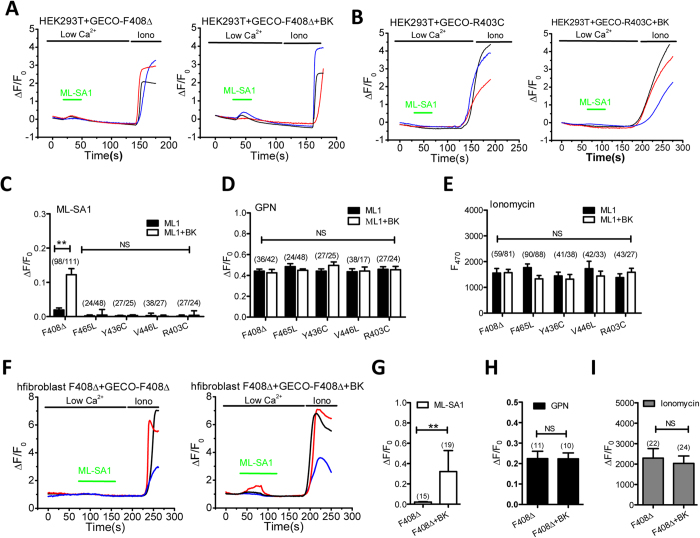 BK upregulation promotes lysosomal Ca 2+ release in ML4 fibroblasts carrying F408Δ mutation. ( A ) BK overexpression increased ML-SA1 (10 μM)-induced GECO-TRPML1-F408Δ response in HEK293T cells. ( B ) BK overexpression did not alter ML-SA1 (10 μM)-induced GECO-TRPML1-R403C response in HEK293T cells. ( C ) Statistical analysis of GECO response to ML-SA1 (10 μM) showing that BK overexpression significantly increased GECO-TRPML1-F408Δ signal but not others. ( D ) BK overexpression did not alter GPN (200 μM)-induced GECO responses. ( E ) BK overexpression did not alter Ionomycin (1 μM)-induced GECO responses. ( F,G ) BK overexpression enhanced GECO-TRPML1-F408Δ response to ML-SA1 (10 μM) in TRPML1-F408Δ human fibroblasts, suggesting that BK upregulation facilitates TRPML1-F408Δ activity. ( H,I ) GECO-TRPML1-F408Δ responses to GPN (200 μM) ( H ) and Ionomycin (1 μM) ( I ) were not altered in TRPML1-F408Δ human fibroblasts by BK overexpession, suggesting BK overexpression did not alter lysosomal Ca 2+ content and GECO- TRPML1-F408Δ expression level in TRPML1-F408Δ human fibroblasts, respectively.