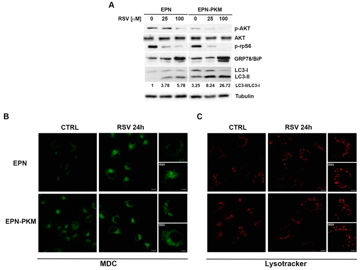 PYK2 and RSV affect autophagy in EPN and EPN-PKM cells: ( A ) Total cell lysates from EPN and EPN-PKM cells in control conditions or treated with 25 and 100 µM RSV for 24 h were analyzed by Western blot using the indicated antibodies. Tubulin was used as loading control. The relative optical density of LC3-II/LC3-I ratio is shown; ( B , C ) EPN and EPN-KM cells, in control conditions (CTRL) or treated with RSV for 24 h were stained with monodansylcadaverin (MDC, in green, B ) or lysotracker (in red, C ) as described in materials and methods. Serial confocal sections were collected for each condition, pictures at higher magnification are shown. Bars, 10 μm.
