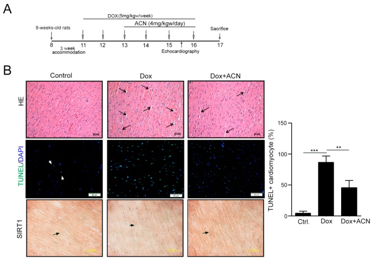 Echocardiographic assessments and histopathological analysis of rat left ventricular cells after doxorubicin and anthocyanin treatment. ( A ) The schematic procedure of DOX and HSF1A administration; ( B ) histopathologic analysis of heart tissue sections stained with H and E. Magnification: 200×; bars = 50 µm. An enlarged interstitium was observed in the doxorubicin-treated rat hearts, and the arrows indicate the myocardial interstitium. The expression of TUNEL + cardiomyocytes and SIRT1 expression were evaluated by immunohistochemistry (IHC) and TUNEL assay. Quantification of TUNEL + cardiomyocytes from each group is shown right ( n = 3 per group). These data were obtained from at least three independent experiments and values represent the means ± S.D. ** p