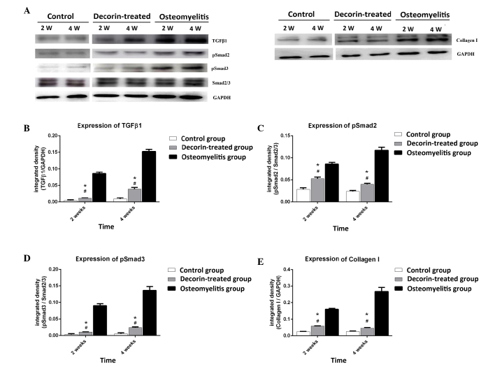 (A) Immunoblotting analysis in the control, osteomyelitis and decorin-treated groups at weeks (W) 2 and 4 after surgery. The expression levels of (B) TGF-β1, (C) pSmad2, (D) pSmad3 and (E) collagen I are shown as the integrated density against GAPDH or Smad2/3. # P