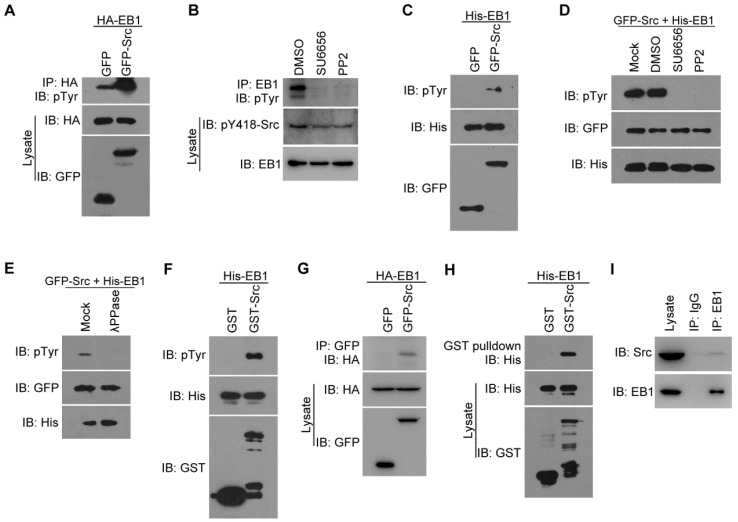 Src interacts with and phosphorylates EB1 both in cells and in vitro . (A) HEK293T cells were transfected with HA-EB1 and GFP-Src or the GFP vector. Immunoprecipitation (IP) and immunoblotting (IB) were then performed with the indicated antibodies. (B) HEK293T cells were treated with SU6656 (10 μM), PP2 (10 μM), or equal amount of the vehicle DMSO for 12 h. Immunoprecipitation and immunoblotting were then performed as indicated. (C) In vitro kinase assays were performed with purified His-EB1 and the GFP or GFP-Src immunoprecipitate from HEK293T cells, and examined by immunoblotting. (D) In vitro kinase assays were performed with purified His-EB1 and the GFP-Src immunoprecipitate, in the absence (Mock) or presence of SU6656 (50 μM), PP2 (50 μM), or equal amount of DMSO, and analyzed by immunoblotting. (E) In vitro kinase assays were performed with purified His-EB1 and the GFP-Src immunoprecipitate, in the absence (Mock) or presence of λPPase, and analyzed by immunoblotting. (F) In vitro kinase assays were performed with purified His-EB1 and purified GST or GST-Src and analyzed by immunoblotting. (G) HEK293T cells were transfected with GFP-Src or the GFP vector. Immunoprecipitation and immunoblotting were then performed with the indicated antibodies. (H) Purified His-EB1 was incubated with purified GST or GST-Src. GST pulldown and immunoblotting were then performed as indicated. (I) The lysate of HUVECs was immunoprecipitated with the EB1 antibody or IgG control. The interaction between endogenous Src and EB1 was then examined by immunoblotting of the precipitates. All experiments were replicated three times.
