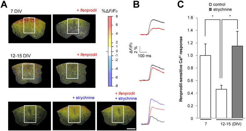 Ca 2+ influx through 2B channels is enhanced by partial blockade of the inhibitory activity in the spinal cord. ( A ) Fluorescence imaging of Ca 2+ using the Ca 2+ -sensitive dye <t>fluo-4.</t> Scale bar = 250 µm. ( B ) Time course of Ca 2+ influx calculated from the fluorescence intensity at the indicated regions of interest. Calibration, Δ F / F 0 2%, 100 ms. ( C ) Ca 2+ response (Δ F / F 0 ) (1.00 ± 0.18 in control at 7 DIV, n = 23, Ns = 23, Nm = 14; 0.46 ± 0.06 in control at 12–15 DIV, n = 12, Ns = 12, Nm = 12; 1.15 ± 0.23 in strychnine, n = 18, Ns = 18, Nm = 16). * p