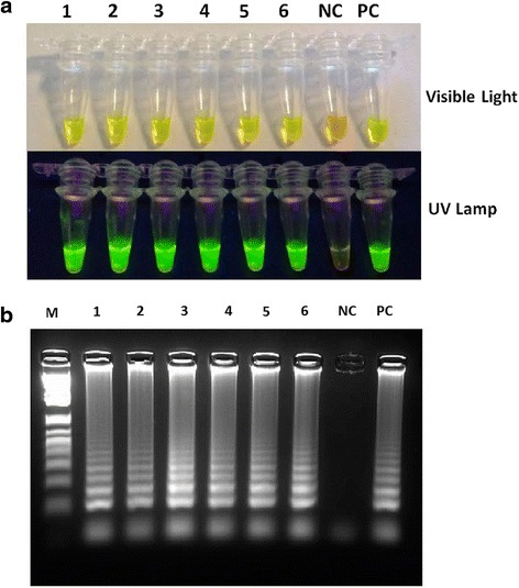 Detection of SS-LAMP. a Visual Detection of SS-LAMP products using inspection of the color change in 1000 X <t>SYBR</t> <t>Green</t> I by the naked eye under visible and UV lights respectively: Samples that turned yellowish green were considered positive, while those remained orange were assumed to be negative. Tube 1 to 6: SS-LAMP products of Mycobacterium tuberculosis extracted genomic DNA. NC: Negative Control. PC: Positive Control ( M. tuberculosis H37Ra genomic DNA). b Lanes 1 to 6: Gel electrophoresis of SS-LAMP products of Mycobacterium tuberculosis genomic DNA. NC: Negative Control. PC: Positive Control ( M. tuberculosis H37Ra genomic DNA). M: 1 kb Ladder
