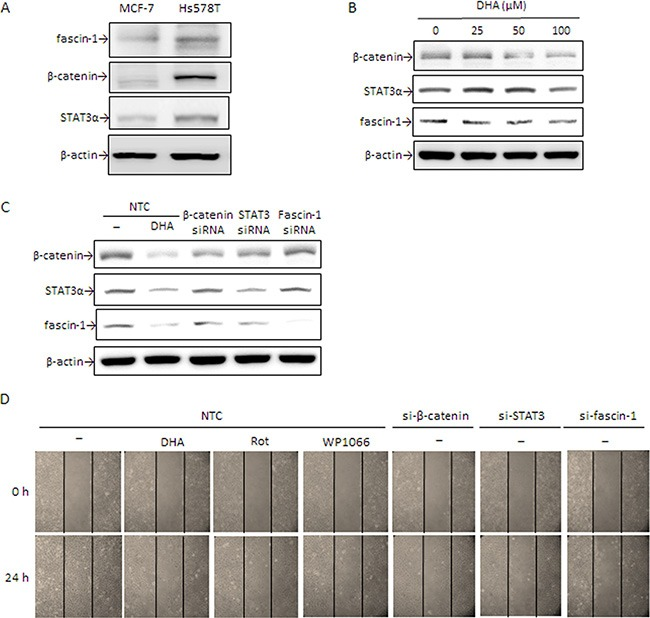 DHA and silencing of β-catenin, STAT3α, and fascin-1 suppress Hs578T cell migration ( A ) β-catenin, STAT3α, and fascin-1 expression in MCF-7 and Hs578T cells were determined by Western blotting. ( B ) Hs578T cells were treated with various concentrations of DHA for 24 h. ( C ) Cells were transiently transfected with β-catenin, STAT3, and fascin-1 siRNA or with nontargeting control (NTC) followed by treated with or without 100 μM DHA, 5 μM Rot or 5 μM WP1066 for an additional 24 h. Protein levels of β-catenin, STAT3α, and fascin-1 (C) as well as cell migration ( D ) were determined. One representative experiment out of three independent experiments is shown.