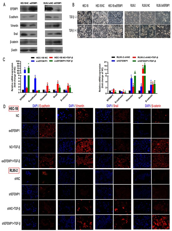 EFEMP1 suppresses EMT in EC cells A. Immunoblotting analysis of the expression of the four EMT-related markers (E-cadherin, Vimentin, Snail and β-catenin) in HEC-1B and RL95-2 cells transfected with plasmids expressing exEFEMP1 and shEFEMP1, respectively. β-actin was used as an internal control. B. The changes in cellular morphology induced by TGF-β that resulted in EMT were evaluated in different groups using phase contrast microscopy. C. Four cell types, HEC-1B-NC, HEC-1B-exEFEMP1, RL95-2-NC and RL95-2-shEFEMP1, were incubated for 48 h in the absence or presence of TGF-β (2 ng/ml) to induce EMT. Then, total RNA was isolated and subjected to quantitative real-time PCR to monitor the expression of EMT-related marker transcripts, which were normalized to β-actin levels. Data shown are the mean (±SD; n=3), *p