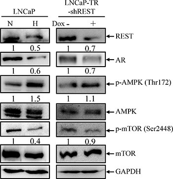 AMPK/mTOR pathway is activated by hypoxia treatment and REST knockdown ( A ) LNCaP cells were treated with normoxia (N) or hypoxia (H) (2% O 2 ) for 3 days (left panel). LNCaP-TR-shREST cells were treated with 1 μg/ml Dox for 3 days to knockdown REST (right panel). Total cell lysates (TLCs) were analyzed by immunoblotting using anti-REST, anti-AR, anti-p-AMPK, and anti-p-mTOR antibodies. Total AMPK and mTOR are used as controls. GAPDH was used as loading control. ( B ) The expression of each protein in three independent experiments was quantified; bars, SD.