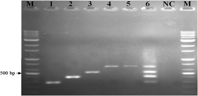 Agarose gel electrophoresis showing monoplex and multiplex PCR-amplified products. M, 100-bp DNA marker; lane 1 , Salmonella enteritidis ATCC13076; lane 2 , L. monocytogenes ATCC19111; lane 3 , E. coli O157:H7 (HCMUS); lane 4 , 16S rRNA of bacterial DNA; lane 5 , a mixture of the three DNA templates of pathogens before the optimizing; lane 6 , the multiplex PCR-optimized conditions with four targets; and NC, negative control