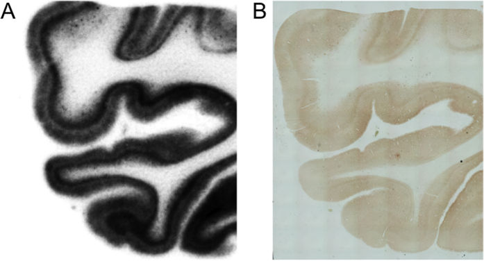 Magnified image of an  in vitro  autoradiogram with [ 125 I]BIP-NMe 2  ( A ) and immunohistochemical staining of the adjacent brain section with anti-phosphorylated tau antibody ( B ).