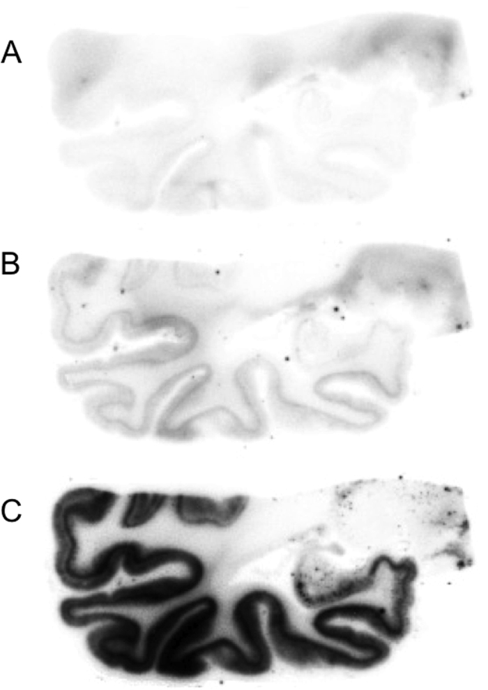 In vitro  autoradiograms of [ 125 I]BIP-NMe 2  on AD brain sections with excess BIP-NMe 2  of 10μM ( A ) and 1μM ( B ) or without BIP-NMe 2  ( C ).