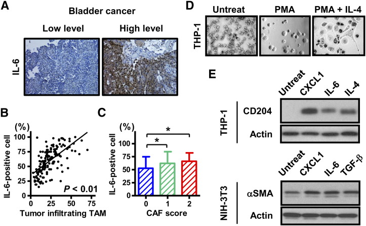 Induction of TAMs and CAFs by IL-6 in human bladder cancer tissues and confirmation by in vitro experiments. (A) Representative expression status for IL-6 in human bladder cancer tissues. Images were captured at 200× magnification. (B) The interrelationship between the percentage of IL-6-positive cancer cells and the number of tumor-infiltrating TAMs was examined using Spearman's correlation. Spearman r was found to be 0.68 (95% confidence interval, 058–0.76). (C) Comparison of the percentage of IL-6-positive cancer with the induction level of CAFs (CAF score). (D) Morphological changes of THP-1 cells by PMA and IL-4 treatment. THP-1 cells were treated with 200 nM PMA for 24 h to differentiate them into resting macrophages (middle), followed by treatment with IL-4 (20 ng/mL) for 48 h (right). (E) Western blot analysis for confirming the generation of TAMs and CAFs. THP-1 cells were treated with a combination of PMA and 20 ng/mL of CXCL1, IL-6, or <t>TGF-β,</t> separately. Upregulation of CD204 indicates differentiation into TAMs. NIH3T3 cells were treated with 20 ng/mL of CXCL1, IL-6, or TGF-β, separately. Upregulation of αSMA indicates the activation of fibroblasts, which are known to be CAFs.