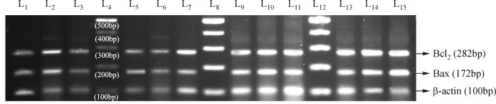 RT-PCR analysis of bcl-2 and bax mRNA expression level, (a). Lane 4,8,12, DNA molecular marker; lane 1, 2, 3, Group-1 (spleen, thymus, lymph node) resp; Lane 5, 6, 7, Group-2 (spleen, thymus, lymph node) resp; Lane 9, 10, 11 Group-3 (spleen, thymus, lymph node) resp; Lane 13, 14, 15 Group-4 (spleen, thymus, lymph node) resp. Group I- Control animals, Group 2- Folate deficient diet fed animals, Group 3- Control animals + aspartame, Group 4- Folate deficient diet fed animals + aspartame.