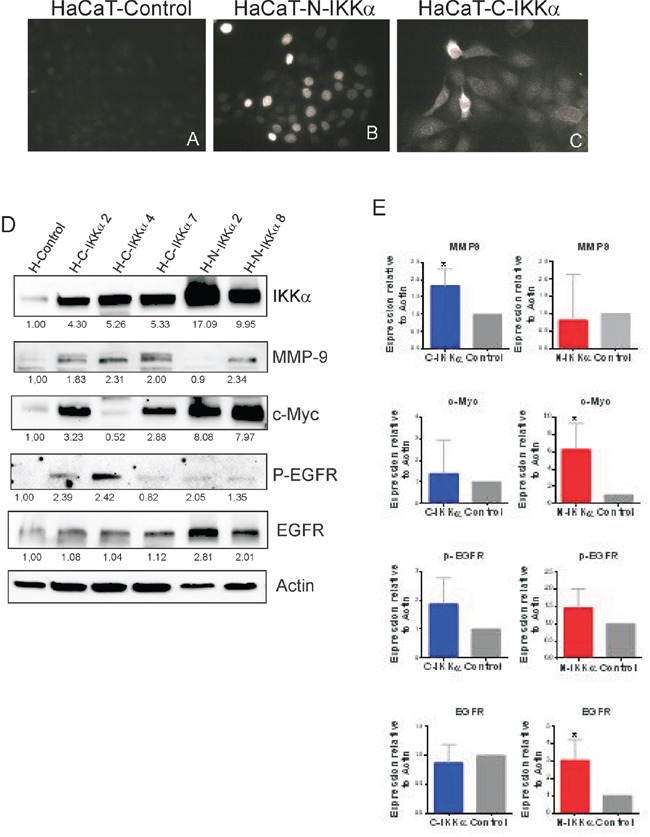 Characterization of the HaCaT-N-IKKα and HaCaT-C-IKKα cells A-C. Immunofluorescence with a Flag specific antibody showing the expression of the transgene in the nucleus of the HaCaT-N-IKKα cells (B) and in the cytoplasm of the HaCaT-C-IKKα cells (C). D. Representative western blot analyisis showing increased levels of IKKα in different pools of transfected HaCaT clones. Observe the increased MMP-9 and EGFR activation in the HaCaT-C-IKKα cells and the enhanced expression of c-Myc in the HaCaT-N-IKKα cells. E. Graphic representation of the densitometric analysis of western blots correponding to 6 pooled clones of HaCaT-C-IKKα cells, 3 pooled clones of HaCaT-N-IKKα cells and 3 pooled clones of HaCaT-Control cells. Student's t test was used for statistical analysis. (*p