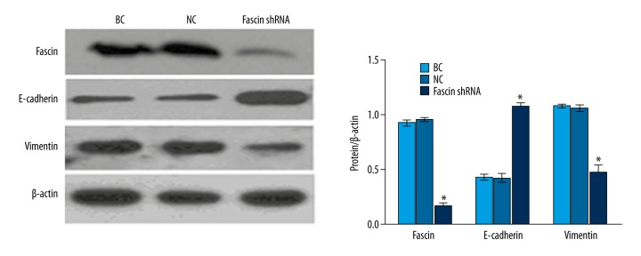 <t>Fascin</t> knockdown can suppress EMT. The results revealed that Fascin silencing can suppress the EMT of QBC939 cells, which increased <t>E-cadherin</t> expression and inhibited vimentin expression compared to the blank control (BC) and negative control (NC) group. (* P