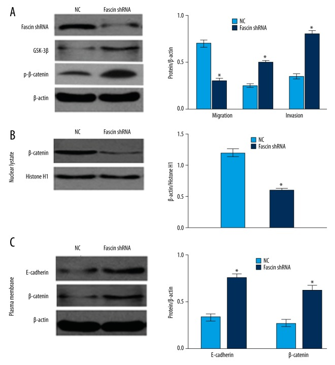 Fascin-induced EMT is dependent on activation of the Wnt/β-catenin signaling pathway. ( A ). Expression of GSK-3β and phosphorylated β-catenin (Ser33/37) in Fascin knockdown QBC939 cells were detected by Western blot analysis. ( B ). Levels of β-catenin of nuclear fractions in Fascin knockdown QBC939 cells was determined by Western blotting. Histone H1 served as loading controls. ( C ). Expression levels of β-catenin and E-cadherin from plasma membrane fractions of Fascin silencing QBC939 cells were processed for Western blotting analysis. * P