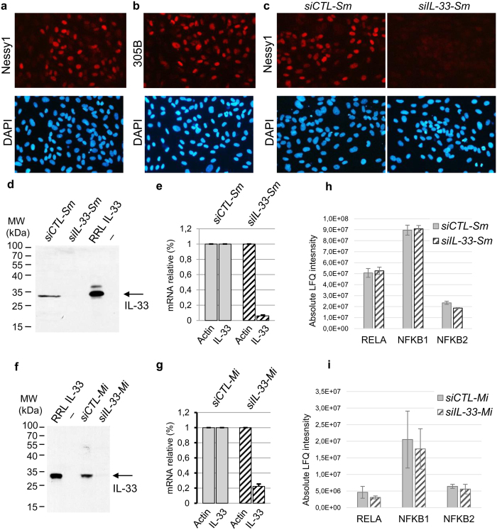 Knockdown of endogenous nuclear IL-33 expression in primary human endothelial cells using two independent <t>RNA</t> silencing strategies. ( a,b ) Nuclear expression of endogenous IL-33 in confluent monolayers of primary human endothelial cells. IL-33 protein (red) was detected by indirect immunofluorescence staining with anti-IL-33 mAbs Nessy1 ( a ) and 305B ( b ). Nuclei were counterstained with DAPI (blue). ( c ) Knockdown of endogenous nuclear IL-33 expression. IL-33 expression was analyzed by indirect immunofluorescence with Nessy1 mAb 48 h after transfection of a pool of IL-33 siRNAs (siIL-33-Sm ) or control siRNA ( siCTL-Sm ). ( d–g ) Validation of the two independent RNA silencing strategies. Expression of IL-33 was analyzed at the protein level by western blot ( d,f ) and RNA level by <t>qPCR</t> ( e,g ), 72 h after the second siRNA transfection. Cells were treated with distinct pools of IL-33 siRNAs , siIL-33-Sm ( d,e ) or siIL-33-Mi ( f,g ), and corresponding controls, siCTL-Sm ( d,e ) and siCTL-Mi ( f,g ). RRL IL-33, human IL-33 protein produced by in vitro translation in rabbit reticulocyte lysates ( d,f ). For the qPCR experiments, relative mRNA levels were calculated by normalizing the signals to those of actin. Results are shown as means with s.d. from three separate datapoints. ( h,i ). Knockdown of endogenous nuclear IL-33 does not affect NFkB protein expression. Normalized protein quantities deduced from all peptides intensity values (LFQ intensities) are shown for NFkB p65 (RELA), NFkB p105 (NFKB1) and NFkB p100 (NFKB2). Endothelial cells were treated with siIL-33-Sm ( h ) or siIL-33-Mi ( i ), and corresponding controls. Results are shown as means with s.d. from three biological replicate experiments.