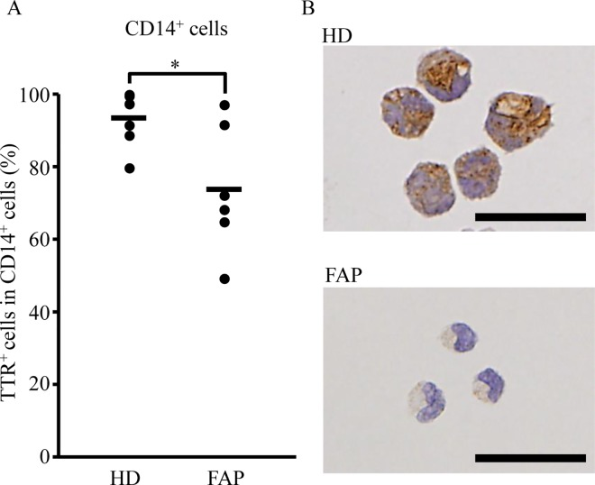 Decreased frequency of intracellular TTR in CD14 + monocytes from FAP ATTR V30M patients. CD14 + monocytes were isolated from PBMC of HD ( n = 7) or FAP ATTR V30M patients ( n = 6) using Ficoll-Paque and magnet bead-conjugated anti-human CD14 antibodies. (A, B) Separated CD14 + monocytes were stained with an anti-human TTR antibody. Five visual fields in each stained section were randomly chosen, and the number of TTR-positive CD14 + monocytes counted by three independent observers. The average count number per visual field is shown. The bar graph (A) shows the frequency of TTR + cells in CD14 + monocytes. Photographs (B) show representative data for each group. Scale bars indicate 25 μm. (A, B) The proportion of repeated count TTR + CD14 + monocytes were analyzed using the mixed model, with * p