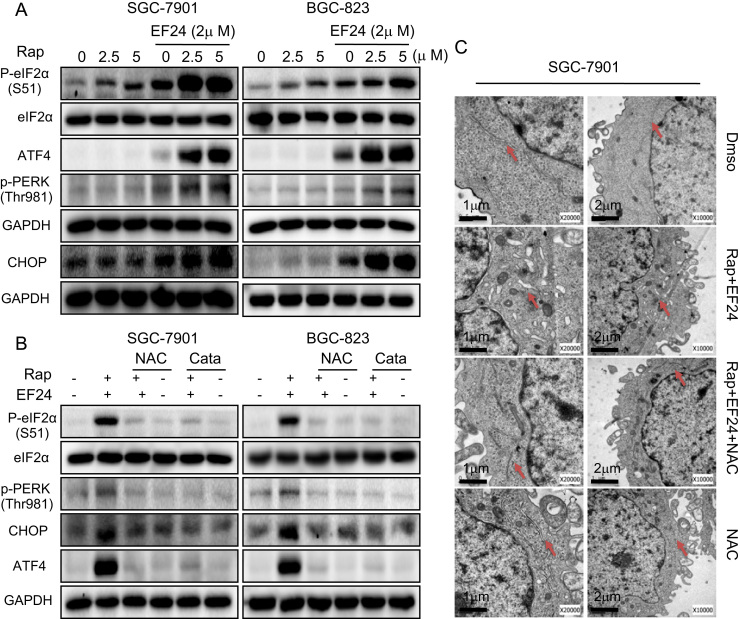 EF24 enhances rapamycin-induced ER stress response by modulating ROS levels . ( A ) Western blot analysis of endoplasmic reticulum (ER) stress related proteins in cells following treatment with rapamycin and EF24 [p-eIF2α=phosphorylated eukaryotic initiation factor 2α; ATF4=activating transcription factor-4; p-PERK=phosphorylated protein kinase RNA-like endoplasmic reticulum kinase; and CHOP=CCAAT/enhancer-binding protein homologous protein]. ( B ) NAC and catalase reversed the combined treatment-induced ER stress response in cells as assessed by western blot analysis. ( C ) Effect of combined rapamycin and EF24 treatment on the morphology of endoplasmic reticulum in SGC-7901 cells. SGC-7901 cells were pre-treated 5 mM NAC for 2 h before exposure to 5 µM rapamycin in combination with 2 µM EF24 for 6 h [×10,000 or ×20,000]. The densitometric quantification bar graphs are shown in Supplementary file. Data were collected from three independent experiments and representative images were shown.