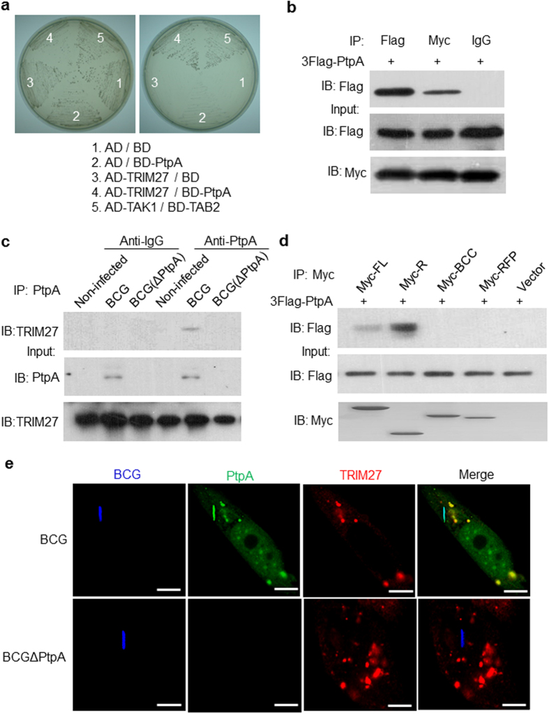 Identification of TRIM27 as a Mycobacterium tuberculosis (Mtb) PtpA-interacting host protein. ( a ) Mtb PtpA interacts with TRIM27 in the yeast two-hybrid assay. Yeast strains were transformed with indicated vectors in which TAK1 and TAB2 interaction served as a positive control. Left, high-stringency. Right, low-stringency. ( b ) Immunoblot analysis (IB) of proteins immunoprecipitated (IP) with immunoglobulin G (IgG; control), anti-Flag or anti-Myc from lysates of HEK293T cells transfected with vectors encoding Flag-tagged PtpA and Myc-tagged TRIM27 (top), and immunoblot analysis without immunoprecipitation (Input; below). ( c ) Immunoblot analysis of proteins immunoprecipitated with anti-PtpA from lysates of U937 cells infected with wild-type (WT) BCG or PtpA deleted BCG (BCGΔPtpA) for 24 h. Non-infected cells were used as a control. ( d ) Immunoblot analysis of proteins immunoprecipitated with anti-Myc from lysates of HEK293T cells transfected with vectors encoding Flag-tagged PtpA and Myc-tagged full-length (FL) TRIM27 or its truncated forms (R, RING; BCC, B-Box region and coiled-coil region; RFP, RFP region). ( e ) Confocal microscopy of U937 cells infected with BCG at a MOI of 20. Mtb PtpA (Green) colocalizes with TRIM27 (Red) in U937 cells. Bacteria (Blue) were stained with Alexa 350 carboxylic acid succinimidyl eater. Scale bars, 10 μm.