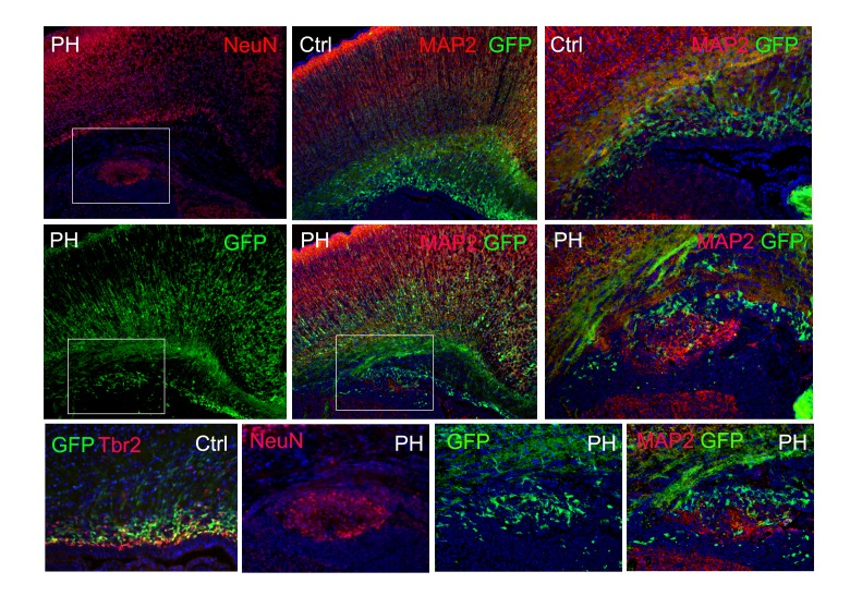 Immunohistological images of a <t>Tbr2</t> eGFP pseudo-lineage tracing study. Tbr2 expressing IPs were marked by EGFP through crossing the Fln cKO-NPC mice with the Tg(Eomes-EGFP) line. Due to the perdurance of EGFP, many newly generated daughter neurons from Tbr2+ IPs also express EGFP. In a Tg( Eomes -EGFP) :: Flna cKO Emx1Cre+ ;Flnb -/- brain at P0, PH was identified by periventricular NeuN or MAP2 immunosignals (red); the co-presence of EGFP+ cells (green) in PH is shown, demonstrating that neurons in PH were generated directly by mislocalized Tbr2+ IPs. Nuclei DNA was stained with Hoechst 33,342 and shown in blue in all fluorescence images. DOI: http://dx.doi.org/10.7554/eLife.17823.009