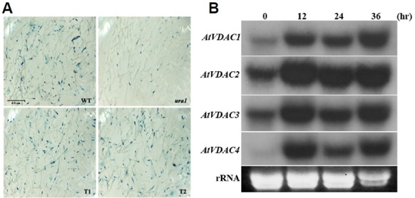 Effects of phytohormone pretreatment on transient T-DNA gene expression and expression profiles of AtVDAC gene family. (A) Sterile root segments of WT, ura1 mutant, and transgenic lines overexpressing AtVDAC1 were incubated on callus inducing medium (CIM) containing phytohormones for 2 days. As described in Materials and Methods, root segments were inoculated with Agrobacterium GV3101containing pBISN1. Two days after co-cultivation, the root segments were stained with X-gluc to determine the efficiency of transient GUS expression. Bar = 0.5 cm. (B) Total RNAs were isolated from whole Arabidopsis WT plants cultivated in CIM for indicated periods. RNA blot analysis was conducted using each AtVDAC full length cDNA as a probe.