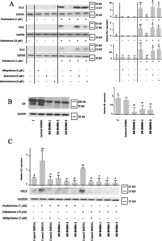 Glucocorticoid-induced leucine zipper ( GILZ ) expression is induced by prednisolone and aldosterone through glucocorticoid receptor ( GR ). a Human osteoarthritis (OA) synovial fibroblasts were pre-incubated or not for 1 h with a GR inhibitor (mifepristone) or mineralocorticoid receptor ( MR ) inhibitors (eplerenone and spironolactone) and were then stimulated for 5 days with a glucocorticoid (prednisolone) or a mineralocorticoid (aldosterone). GILZ and glyceraldehyde 3-phosphate dehydrogenase ( GAPDH ) expression in whole-cell extracts were analyzed by western blotting. Right panels , quantification results of western blots shown in left panels . Protein levels were normalized to GAPDH. Graphs represent mean +/- SD (n = 4 patients). Significance was set at p