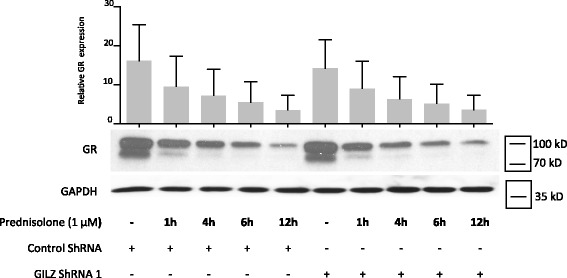 Glucocorticoid-induced leucine zipper (GILZ) silencing did not alter prednisolone-induced glucocorticoid receptor ( GR ) degradation. Human osteoarthritis (OA) synovial fibroblasts were infected with a lentivirus expressing GILZ short hairpin RNA ( shRNA ) or with a control lentivirus. After 72 h, the cells were stimulated for 1, 4, 6, or 12 h with a glucocorticoid (1 μM prednisolone). Leptin expression was measured in the cell culture supernatants by ELISA. GILZ and glyceraldehyde 3-phosphate dehydrogenase ( GAPDH ) expression in whole-cell extracts was analyzed by western blotting. Upper panel , quantification results of western blot shown in the lower panel . Protein levels were normalized to GAPDH. Graph represents mean +/- SD (n = 3) patients. kD kiloDalton