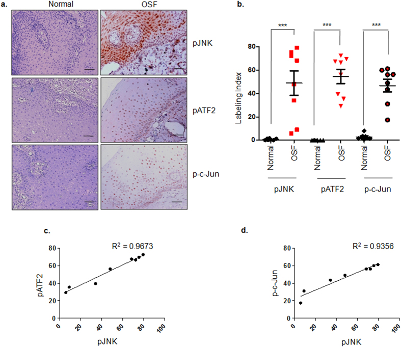 pJNK, pATF2 and p-c-Jun are up regulated in OSF tissues. ( a ) Representative images of immunohistochemistry performed on normal (n = 8) and OSF (n = 8) tissues for evaluating activation of JNK (pJNK), ATF2 (pATF2) and c-Jun (p-c-Jun). pJNK, pATF2 and p-c-Jun levels were observed to be high in OSF tissues as compared to normal tissues. Magnification factor = 20X; scale bar = 50 μm. ( b ) Scatter graph depicting labeling index for each of the tissue samples scored for pJNK, pATF2 and p-c-Jun staining. Unpaired t-test was performed for statistical significance between the median labeling index of two groups (Normal and OSF tissues). ( c ) Pearson's correlation graph for pATF2 (Y axis) and pJNK (X axis) staining in OSF tissues. ( d ) Pearson's correlation graph for p-c-Jun (Y axis) and pJNK (X axis) staining in OSF tissues. *** represents p value ≤ 0.0001.