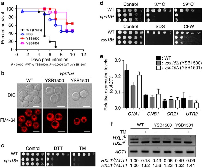 Retrograde vacuole trafficking controls the pathogenicity of Cryptococcus neoformans . Various tests were performed using WT strain (H99S) and vps15 Δ mutants (YSB1500 and YSB1501) ( a ) Vps15 is required for virulence of C. neoformans . WT and PBS were used as positive and negative virulence controls, respectively. ( b ) vps15 Δ mutants display enlarged vacuole morphology. Scale bars,10 μm. ( c ) vps15 Δ mutants show significant growth defect under ER stresses. Overnight cultured cells were serially diluted tenfold (undiluted to 10 4 -fold dilution), spotted on the solid YPD medium containing 15 mM dithiothreitol (DTT) or 0.3 μg ml −1 tunicamycin (TM), further incubated at 30 °C for 3 days, and photographed. ( d ) vps15 Δ mutants show significant growth defects at high temperature and under cell membrane/wall stresses. Overnight cultured cells were spotted on the YPD medium and further incubated at indicated temperature (upper panel) or the YPD medium containing 0.03% SDS or 5 mg ml −1 calcofluor white (CFW) and further incubated at 30 °C (lower panel). Plates were photographed after 3 days. ( e ) Vps15 is not involved in the regulation of the calcineurin pathway in C. neoformans . For quantitative RT–PCR (qRT–PCR), <t>RNA</t> was extracted from three biological replicates with three technical replicates of WT and vps15 Δ mutants. CNA1 , CNB1 , CRZ1 , UTR2 expression levels were normalized by ACT1 expression levels as controls. Error bars represent s.e.m. ( f ) Vps15 negatively regulates the HXL1 splicing. For RT–PCR, total RNA was extracted from WT and vps15 Δ mutants and <t>cDNA</t> was synthesized. HXL1 and ACT1 -specific primer pairs were used for RT–PCR. This experiment was repeated twice and one representative experiment is presented. The whole-gel images were displayed on Supplementary Fig. 6e .