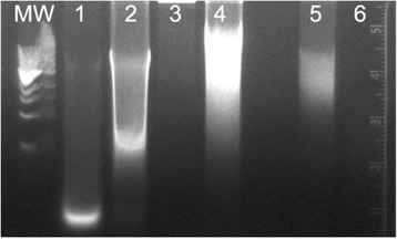 Agarose gel electrophoresis of DNA isolated from cadaver tissues using the DNeasy Blood Tissue Kit. MW = Quick-load 1 kb DNA Ladder (New England BioLabs). Lane 1: Liver without RNAse treatment. Lane 2: Heart without RNAse treatment. Lane 3: Liver with RNAse treatment. Lane 4: Heart with RNAse treatment. Lane 5: Skeletal Muscle with RNAse treatment. Lane 6: Skin with RNAse treatment