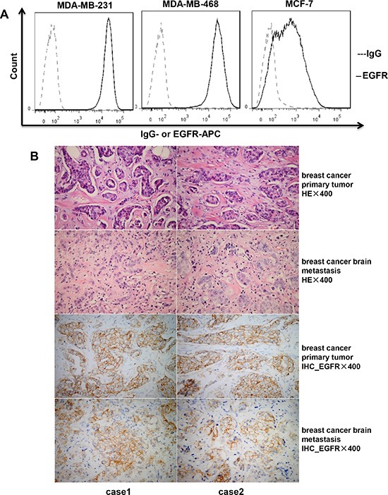 Expression of EGFR in breast cancer cell lines and tissues ( A ) Expression of EGFR on the cell surface of breast cancer cell lines (MDA-MB-231, MDA-MB-468, and MCF-7) detected by flow cytometry. ( B ) Hematoxylin and eosin (HE) staining and immunohistochemistry (IHC) of EGFR expression for tumor tissues from patients with primary breast cancer and brain metastases.