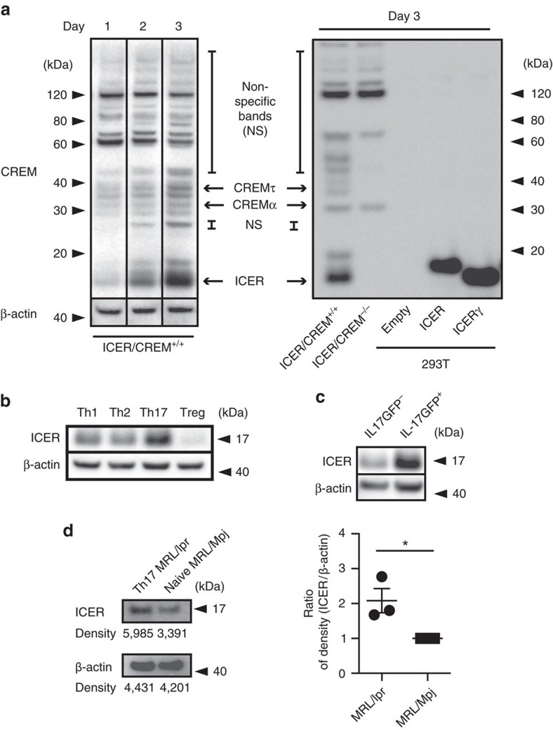 ICER is expressed in IL-17-producing murine T cells. ( a , left) CREM and β-actin expression in Th17-polarized ICER/CREM +/+ murine CD4 + T cells was measured by western blotting at the indicated time points. ( a , right) CREM expression on day 3 in Th17-polarized ICER/CREM +/+ murine CD4 + T cells (right, far left), Th17-polarized B6.ICER/CREM −/− mice CD4 + T cells (right, second left), empty plasmid transfected HEK-293T cells (right, third left), ICER-overexpressing plasmid-transfected HEK-293T cells (right, third right) or ICERγ-overexpressing plasmid-transfected HEK-293Tcells (right, second right) was measured by western blotting. Data are representative of four experiments. ( b ) ICER/CREM and β-actin expression on day 3 of Th0-, Th1-, Th17- and Treg-polarized ICER/CREM +/+ mice CD4 + T cells was measured by western blotting. Data are representative of three experiments. ( c ) ICER/CREM and β-actin expression of FACS-sorted GFP + (IL-17A-producing cells) or GFP − (IL-17A-non-producing cells) in Th17-polarized B6. IL-17A GFP ICER/CREM +/+ CD4 + T cells on day 3 were measured by western blotting. Data are representative of three experiments. ( d ) ICER and β-actin expression of FACS-sorted IL-17A-producing cells from 18-week-old MRL/lpr mice or naive CD4 T cells from 18-week-old MRL/Mpj control mice was determined by western blotting. A representative (of three) blot is shown (left) and densitometric readings from three experiments are shown on the right (* P
