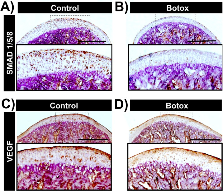 Decreased expression of SMAD1/5/8 and VEFG in the Botox injected side MCC and subchondral bone. Immunohistochemistry for SMAD1/5/8 in sagittal sections of control (A) and Botox (B) injected side condyles. VEGF Immunohistochemistry in sections of control (C) and Botox (D) injected side condyles. Scale bar = 500μm.