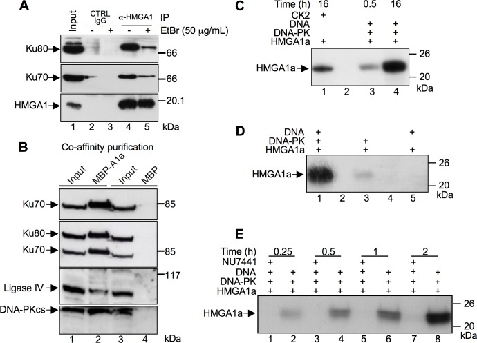 HMGA1a associate with the NHEJ DNA repair protein machinery and is a DNA-PK substrate. A. Co-immunoprecipitation (Co-IP) assay of endogenous HMGA1, Ku70, and Ku80 proteins on MDA-MB-231 cells in the presence of absence of Ethidium Bromide (EtBr). Cell lysates were immunoprecipitated with α-HMGA1. The cell lysates (input) and immunoprecipitates were analyzed by immunoblotting with antibodies as indicated. B. HMGA1a fused to MBP (MBP-A1a) or the MBP alone were produced by transient transfection in HEK 293T cells. Cellular lysates (input, lanes 1 and 3) were incubated with amylose resin and affinity captured MBP-HMGA1a and MBP proteins recovered. Bound proteins were eluted by SDS sample buffer, separated by SDS-PAGE (T = 10%), and analyzed by western blot using antibodies specific for Ku70, Ku80 (after Ku70 recognition), Ligase IV, and the catalytic subunit of DNA-PK, DNA-PKcs. C. Recombinant HMGA1a protein was subjected to a phosphorylation assay in presence of [γ- 32 P] ATP with DNA-PK for 0.5 and 16 h (lanes 3 and 4, respectively) and CK2 for 16 h (lane 1). D. Recombinant HMGA1a was subjected to a phosphorylation assay for 16 h with a complete DNA-PK reaction mix (lane 1), without activating DNA (lane 3), or without DNA-PK itself (lane 5). E. Time course phosphorylation assay (0.25, 0.5, 1, and 2 hours) performed with recombinant HMGA1a in the presence (lanes 1, 3, 5, and 7) or absence (lanes 2, 4, 6, and 8) of a specific DNA-PK inhibitor (NU7441–50 nM). Phosphorylated proteins were separated by SDS-PAGE (T = 15%) and 32 P incorporation visualized by autoradiography. Protein molecular markers (kDa) are indicated on the right.
