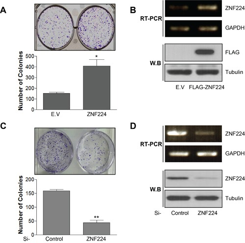 ZNF224 increases colony forming ability of MCF-7 cells A. MCF-7 cells were transfected with empty vector (E.V) or FLAG-ZNF224 (2 μg) and subjected to colony forming assay for 14 days (*, vs. E.V). B. The over-expression of FLAG-ZNF224 was confirmed by RT-PCR and immunoblot. C. MCF-7 cells were transfected with control or ZNF224 targeting si-RNA (20 nM), and colony forming ability was examined (**, vs. si-control). D. The knock-down of ZNF224 was examined by RT-PCR and immunoblot. GAPDH and tubulin were used as loading control. Data represent the mean ± SEM of three independent experiments. * P