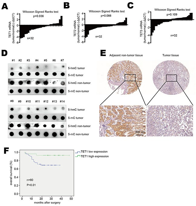 TET1 is down-regulated in gastric cancer A. TET1, B. TET2 and C. TET3 mRNA expression in gastric cancer tissues verse adjacent non-tumor tissues. Data are showed as log 2 fold changes (tumor/normal). Results were analyzed by the Wilcoxon Signed Ranks test. D. 5-hmC and 5-mC content were detected by dot blot in gastric cancer tissues compared to adjacent normal tissues. E. IHC analysis of TET1 in gastric cancer tissues and adjacent non-tumor tissues (upper panel 20×, lower panel 200×). F. Kaplan–Meier analysis of overall survival in 80 patients with gastric cancer.