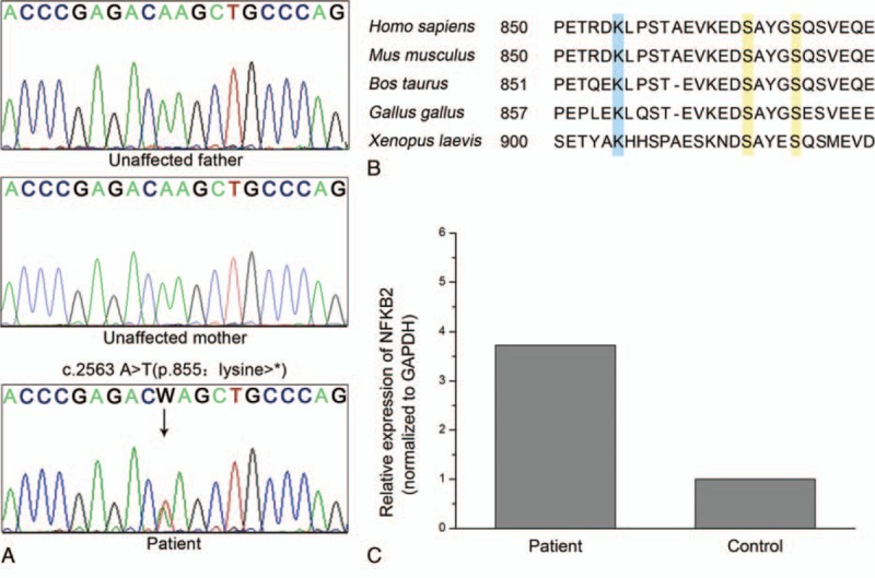 A novel NFKB2 mutation and NF-κB sequence alignments. (A) Sanger sequencing revealed a heterozygous c.2563 A > T (p.855: Lys > ∗ ) mutation (arrow) in NFKB2 gene of the proband. This variation was not identified in her parents. (B) NF-κB p100 C-terminus amino acid sequence alignments. Lysine 855, highlighted in blue, serves as an acceptor for ubiquitination. Serine 866 and 870, highlighted in yellow, are phosphorylation sites that lead to proteolysis. (C) NFKB2 transcripts in peripheral blood mononuclear cells from proband and a healthy control were quantified by real-time PCR.
