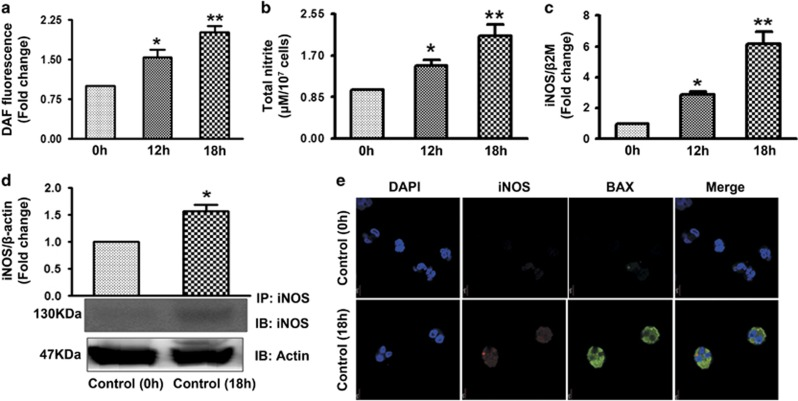 iNOS/NO production during human PMNs spontaneous apoptosis. ( a ) NO generation as measured by DAF. Control human PMNs (1 × 10 6 cells/ml) were incubated with DAF after 12 and 18 h ( N =6). ( b ) Total nitrite content measured using Griess reagent in fresh control and apoptotic cell after 12 and 18 h ( N =6). iNOS expression was monitored by real-time PCR ( c ) in fresh control and apoptotic human PMNs and western blotting ( d ) ( N =5). ( e ) Immunolabelling of iNOS in fresh and apoptotic neutrophils. Cells were fixed and permeabilized followed by labelling with iNOS and Bax ( N =2). Scale bar-5 μ m. Data represent mean±S.E.M. of three to five independent experiments. * P