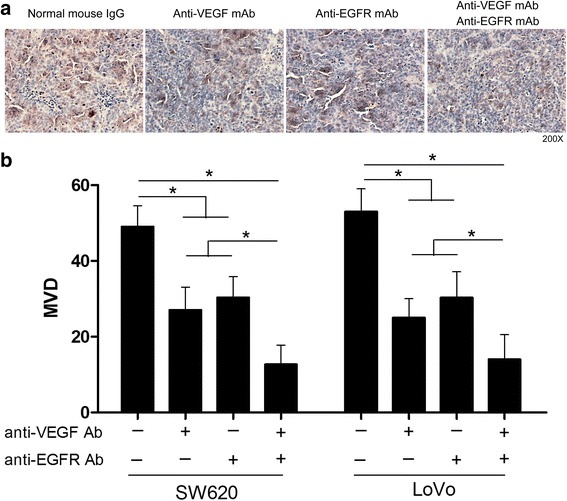 Suppression of CRC cells tumor angiogenesis by anti-VEGF and anti-EGFR antibodies. a Representative photographs of anti-CD34 staining in SW620 cells tumors. b The numbers of positively CD34 stained cells in subcutaneous SW620 and LoVo cells tumors. The data are representative of at least three different experiments ± SEM. * P