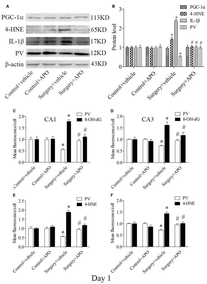 Hippocampal oxidative stress detected by Western blot and double-immunofluorescence staining in PV interneurons on day 1 post-surgery. (A) Representative Western blot images of PV, IL-1β, 4-HNE and <t>PGC-1α</t> in the hippocampus in the four groups; (B) Quantitative analysis. (C,D) Quantification of PV and 8-OH-dG fluorescence in areas CA1 and CA3. (E,F) Quantification of PV and 4-HNE fluorescence in areas CA1 and CA3. The data are presented as the mean ± S.E.M. (5 mice in each group in A,B , 8 mice in each group in C–F ). * p