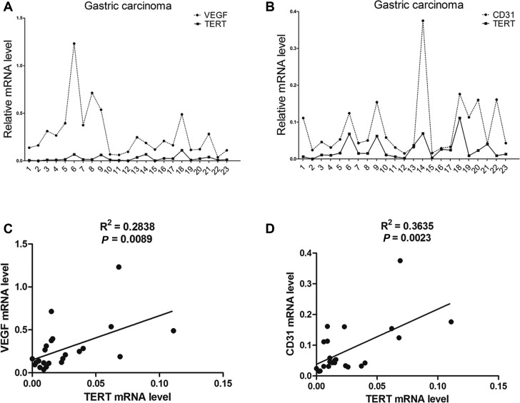 hTERT expression correlates with VEGF and CD31 in gastric tumors. ( A and B ) qRT-PCR analysis of (A) VEGF , (B) CD31 and hTERT expression in 23 human gastric mucosa tissues. ( C ) Regression analysis of the correlation between VEGF and hTERT expression. ( D ) Regression analysis of the correlation between CD31 and hTERT expression. Each point represents one cancer sample.