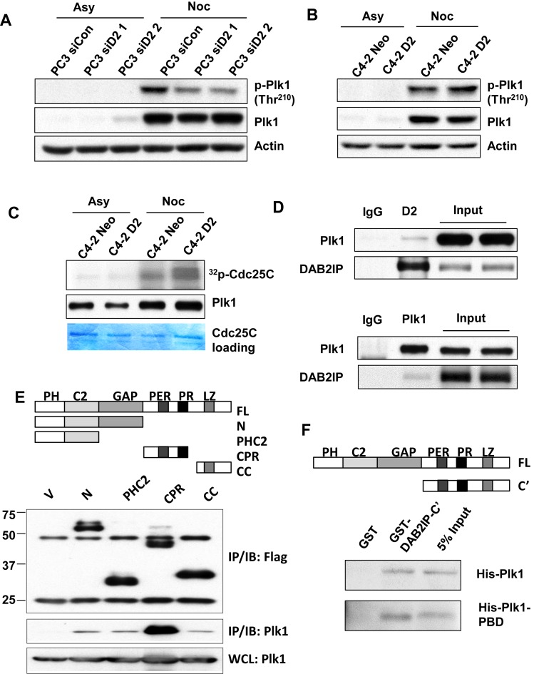 DAB2IP interacts with Plk1 and promotes Plk1 activity. ( A ) Paired PC3 and ( B ) C4-2 cells were treated with nocodazole (50 ng/ml) for 16 h. Mitotic cells and untreated cells were analyzed by immunoblotting with anti- phospho-Plk1 (Thr210), anti-Plk1 and anti-Actin antibodies. ( C ) Mitotic and untreated C4-2 Neo and C4-2 D2 cells were analyzed for Plk1 activity by the Plk1 kinase assay using GST-Cdc25C as the substrate. Phosphorylation of GST-Cdc25C was visualized by autoradiography. Immunoblot analysis of Plk1 showed similar levels of Plk1 in the kinase assay. ( D ) C4-2 D2 cells were synchronized with nocodazole (50 ng/ml) for 16 h and mitotic cells were collected by shake off. Mitotic cell lysates were immunoprecipitated with anti-DAB2IP, anti-Plk1 antibodies or rabbit IgG followed by immunoblot analysis to detect DAB2IP and Plk1 levels. ( E ) Top: Schema of the truncated domains of DAB2IP. Bottom: Various cDNA constructs of DAB2IP truncations were co-transfected with HA-Plk1 into 293T cells and immunoprecipitated using anti-Flag antibody; HA signal was examined by Western blotting. ( F ) Direct protein–protein interaction between DAB2IP and Plk1. GST fusion proteins carrying C-terminal of DAB2IP was incubated with His-tagged full-length Plk1 or Plk1-PBD domain followed by glutathione agarose pull-down. The bound Plk1 or PBD domain was detected by anti-His antibody.