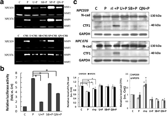 PMA or CM1 upregulated MMP-9 via the ERK, p38 MAPK and NF-κB pathways. a PMA (m ϕ CM) induced MMP-9 expression via activation of MAPK and NF-κB pathways. NPC cells were pre-treated with specific inhibitors of ERK 1/2 (U0126, 10 μM), p38 (SB203580, 10 μM), JNK (SP600125, 10 μM) or NF-kB (QNZ, 10 μM) for 1 h, then treated with PMA (100 nM) or m ϕ CM for 18 h, and MMP-9 levels in the CM were determined by gelatin zymography. The relative level of MMP-9 expression was compared in cells treated with MAPK or NF-κB inhibitor plus PMA and PMA treatment alone; N = 3, * P
