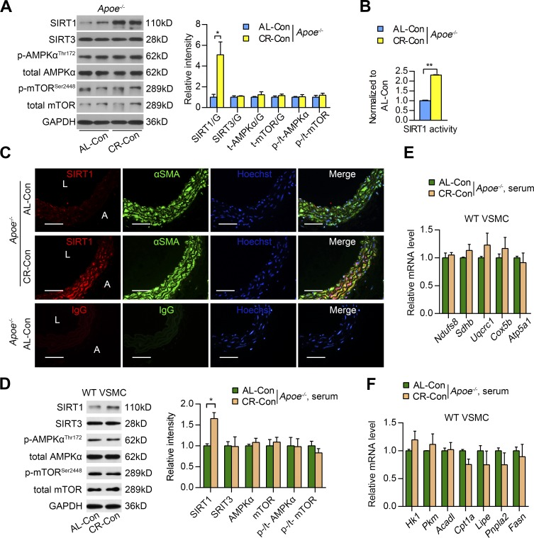 VSMC-SIRT1 is the main sensor of CR in aortas. (A) SIRT1, SIRT3, phosphorylated (p-AMPKα) and total AMPKα (t-AMPKα), and phosphorylated (p-mTOR) and total mTOR (t-mTOR) protein expression in aortas of Apoe −/− mice in the indicated group. Protein expression was detected by Western blotting (left) and quantified by densitometry (right). Quantitative results are normalized to the AL-Con group values. n = 5 per group. G, GAPDH. (B) SIRT1 activity in aortas of Apoe −/− mice from the indicated group. n = 5 per group. (C) Representative images of IF staining of SIRT1, VSMCs (αSMA), and nuclei (Hoechst) in the suprarenal aortas of Apoe −/− mice for the indicated groups. Anti-SIRT1 and anti-αSMA antibodies were replaced by normal IgG as a negative control. A, adventitia; L, lumen. Bars, 50 µm. (D) SIRT1, SIRT3, phosphorylated and total AMPKα, and phosphorylated and total mTOR protein expression in VSMCs (isolated from the suprarenal abdominal aortas of WT mice) that were incubated with serum from AL-Con mice or CR-Con mice for 48 h. Protein expression was detected by Western blotting (left) and quantified by densitometry (right). Quantitative results are normalized to the values of the AL-Con group. Experiments were performed in triplicate. (E and F) Relative mRNA expression of genes encoding mitochondrial respiratory chain subunits (E) and genes involved in glucose and lipid metabolism (F) in WT VSMCs that were incubated with serum from AL-Con mice or CR-Con mice for 48 h. Experiments were performed in triplicate. All values are shown as the means ± SEM. *, P