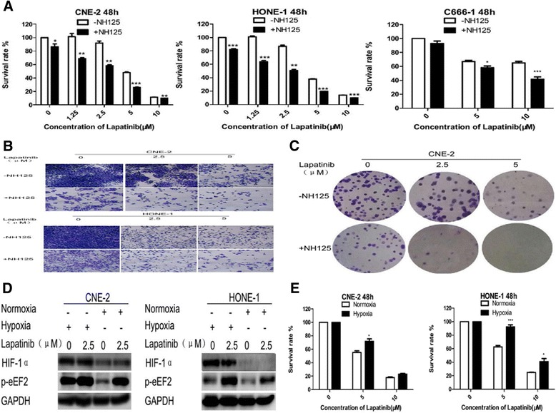 NH125 sensitizes NPC cells to lapatinib. a , b and c NPC cells were treated with lapatinib or DMSO for 48 h in the presence or absence of 0.25 μM NH125. a Cell viability was assessed by the CCK-8 assay. Results are expressed as means ± standard deviation. *, P