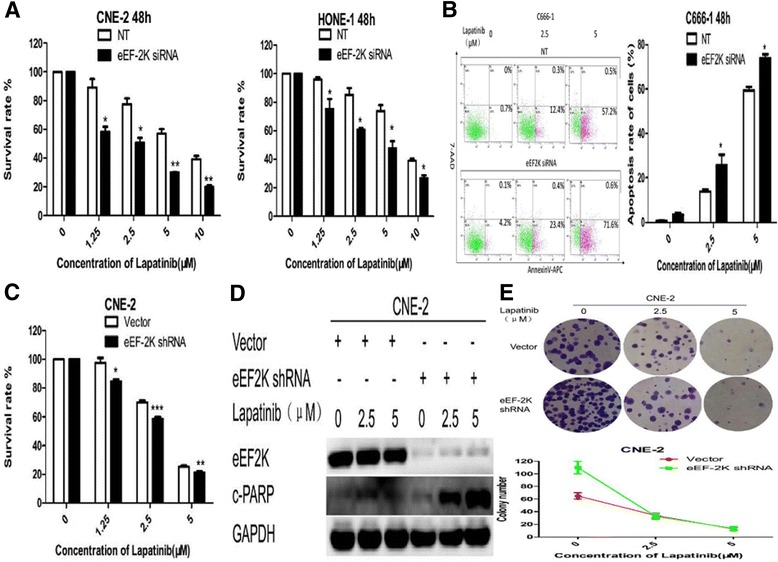 Silencing of eEF-2 kinase expression by RNA interference augments lapatinib-induced apoptosis in NPC cells. a and b NPC cells were transfected with a non-targeting RNA (NT) or siRNA targeting eEF-2 kinase (eEF-2 K siRNA) followed by treatment with lapatinib or DMSO for 48 h. a Cell viability was assessed by the CCK-8 assay. b Annexin V-APC/7-AAD double staining was performed to detect apoptotic activity. Results are displayed as histograms. Each bar represents the mean ± standard deviation. *, P